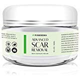 Advanced Treatment for Face & Body, Old & New Scars from Cuts, Stretch Marks, C-Sections & Surgeries – With Natural Herbal Extracts Formula – Scar Removal Cream